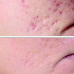 Acne & Pockmarks Reduction