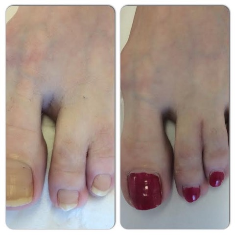 Syndactyly Webbed Fingers Or Toes Medicare Cosmetics