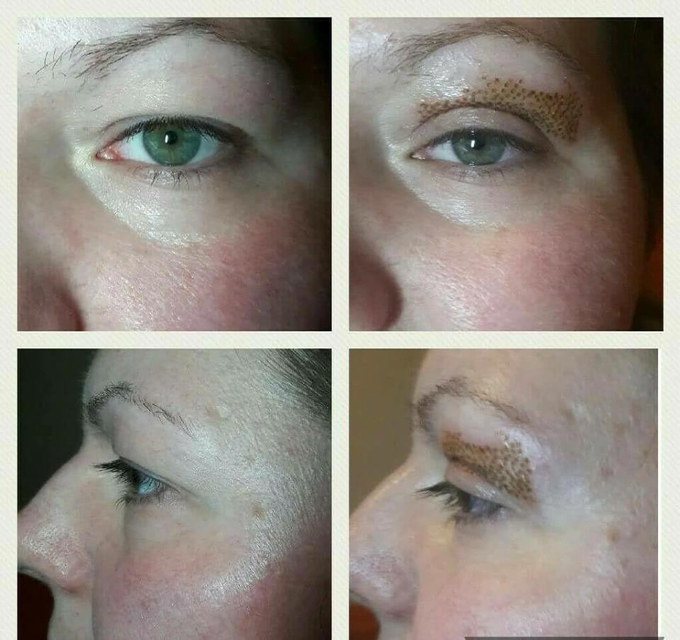 Fibroblast Skin Tightening Redcar Middlesbrough