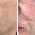 Improved fine line and wrinkle treatment