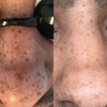 Reduction of Pigmentation