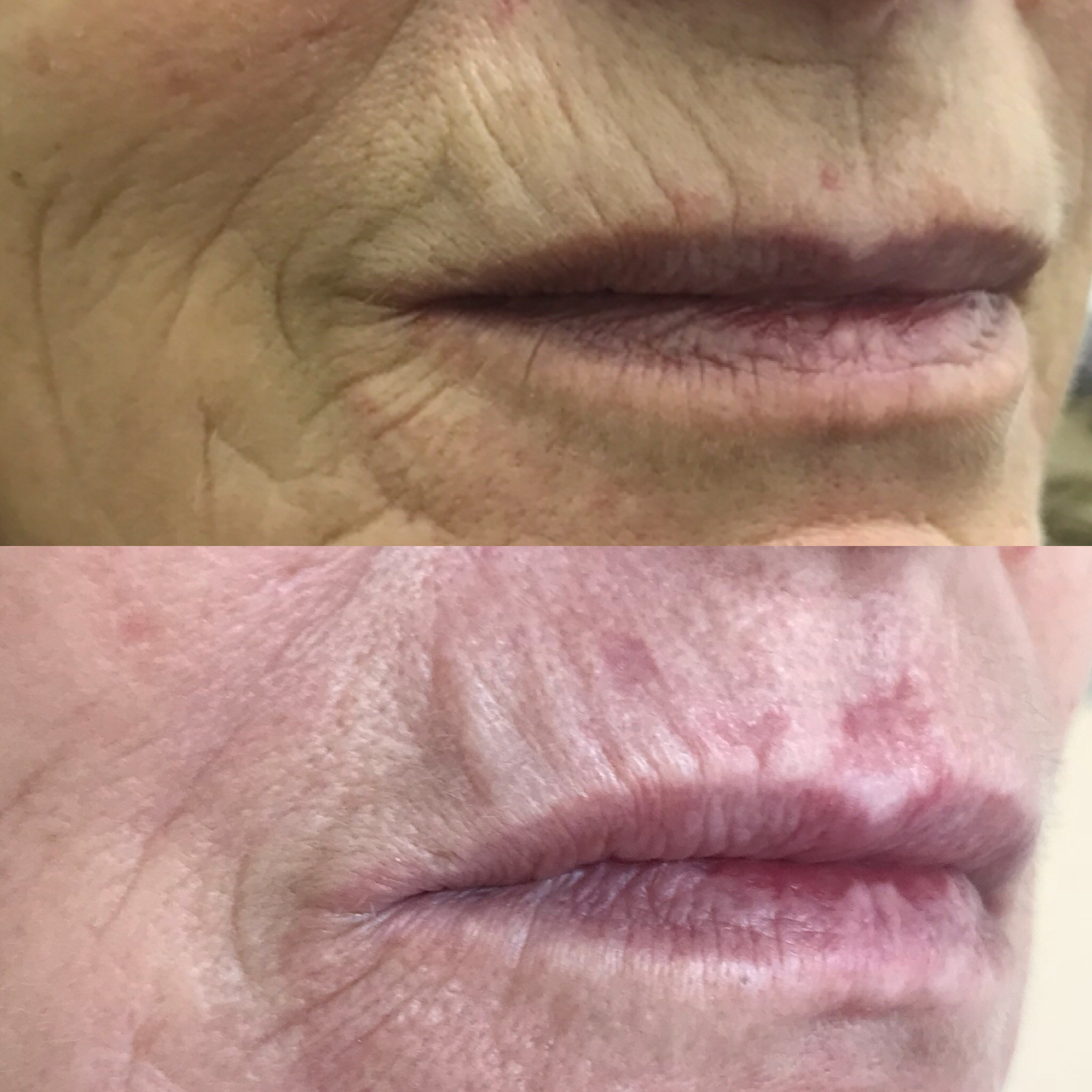 Fine Lines and Wrinkles reduced