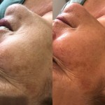 Before and After Dermaplaning